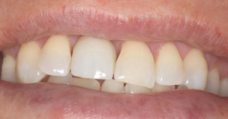 implant-replacing-front-tooth-After-Image