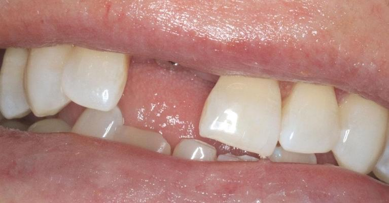 implant-replacing-front-tooth-Before-Image